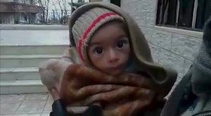 A toddler in Madaya, Syria