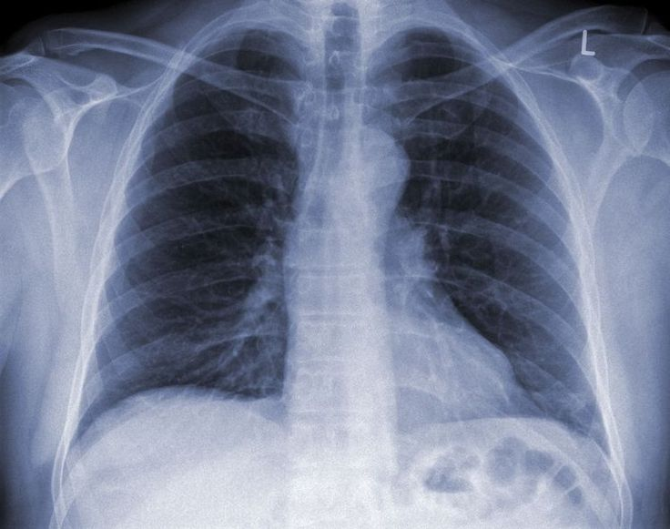 "Can You Really ""Catch"" Pneumonia?"