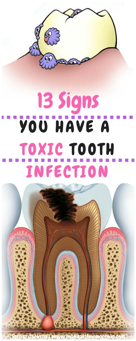The common term for an infection is an abscessed tooth, which is a dental infection at the root of the tooth, where the gum line meets the tooth.  It leads to decay and is caused by bacteria seeping into a crack, chip, dental cavity, and works its way down to the root. If its left untreated, it will cause severe inflammation and pain of the tooth and gum.