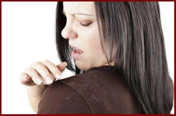 How to Prevent Dandruff in Winter    #Prevent #Dandruff #Winter