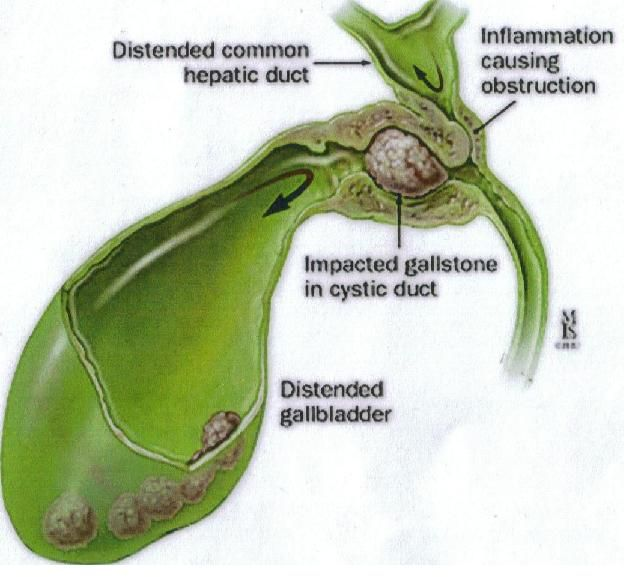 16 best images about gall bladder on pinterest | gallstone, gall, Human Body