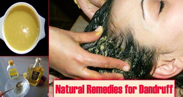 Prevent Dandruff Naturally !! - very important Info