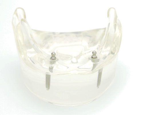 Prothèse amovible sur implants  Contrairement à l'appareil dentaire amovible, la prothèse dentaire sur implants ne nécessite pas de colle pour prothèse. Elle est retenue par des implants dentaires. Au cours des années, l'os de la mâchoire s'amincit en raison des dentiers traditionnels qui s'appuient sur les gencives ce qui cause un inconfort continuel et dans certaines situations des irritations. Pour plus d'informations, visitez ledenturo.ca