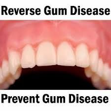 how to get gum disease