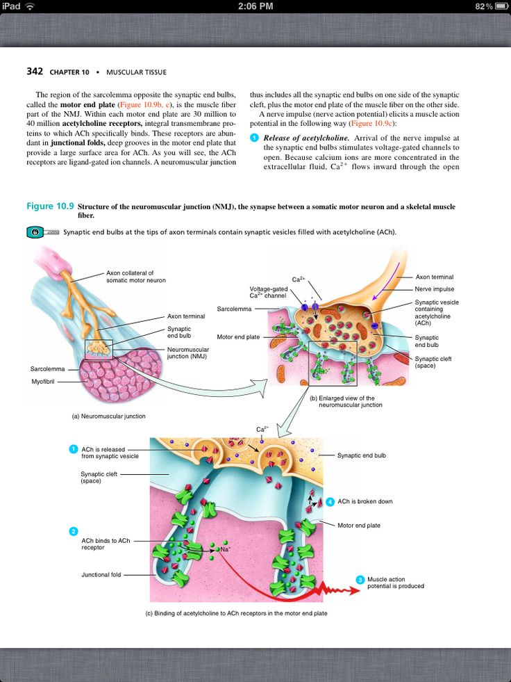 40 best Chapter 10, Muscular Tissue images on Pinterest   Book ...
