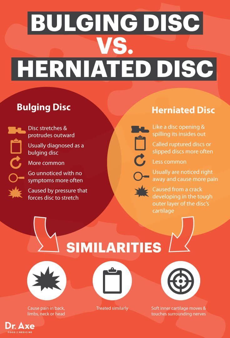Natural Remedies For Herniated Disc In Lower Back