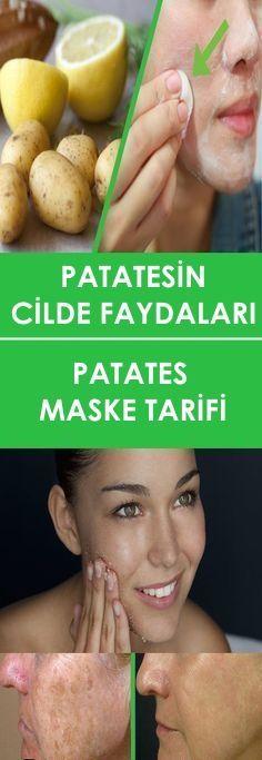 PATATES MASKESİ