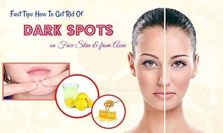 how to get rid of red spots on face after acne