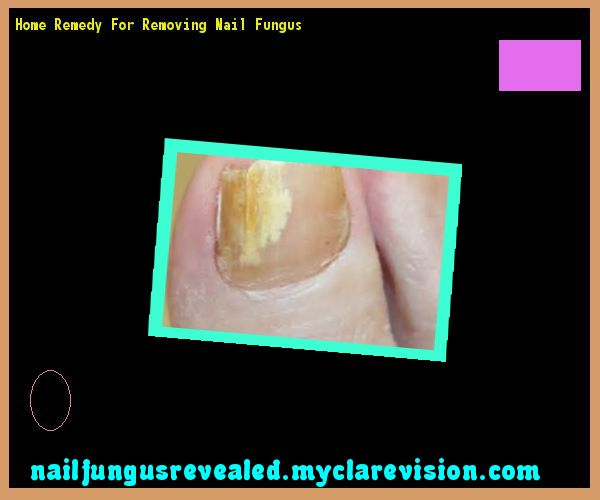 Home remedy for removing nail fungus - Nail Fungus Remedy. You have nothing to lose! Visit Site Now