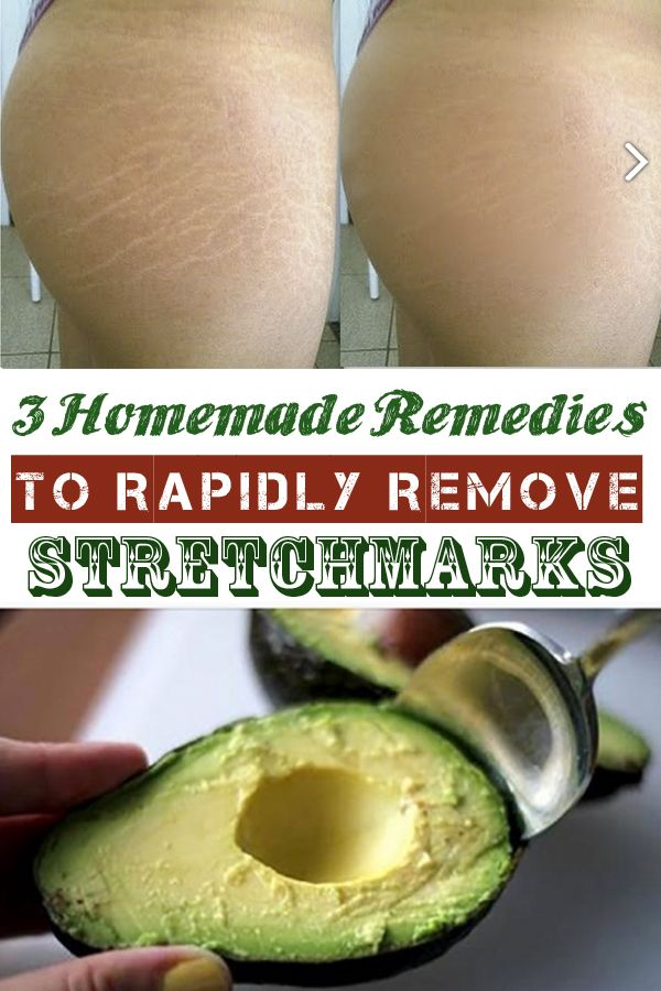 3 Homemade Remedies to Rapidly Remove Stretchmarks
