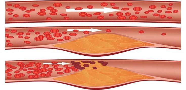 Napój oczyszczający tętnice może uratować Ci życie! Wysokie ciśnienie można wyleczyć za pomocą pewnego domowego sposobu. Wystarczy pić regularnie cztery łyżki tego napoju. Przyjmuj ten preparat każdego ranka, a szybko pozbędziesz się nie tylko problemów