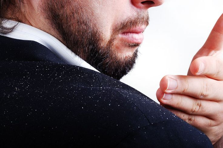 Dead skin cells shed by the scalp are referred to as dandruff. Dandruff is common, has terrible nuisance value and it can cause loss of self-esteem and social problems. Here are a few practical homemade remedies that should help: