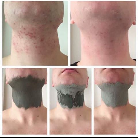 Not just for the ladies  Check out the results from a customer who's fella used the Marine Mud Mask