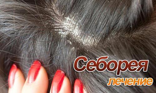 Как возникает себорея кожи головы и лици, и чем лечить неприятное заболевание в домашних условиях.