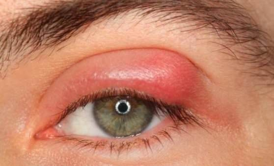 How to treat a stye fast and effectively? A stye is a small, tender lump which develops on the eyelid. It can be very painful and unattractive, yet th...