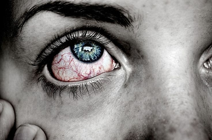 Eye, Sick, Blue, Red, Pain Photo - Visual Hunt
