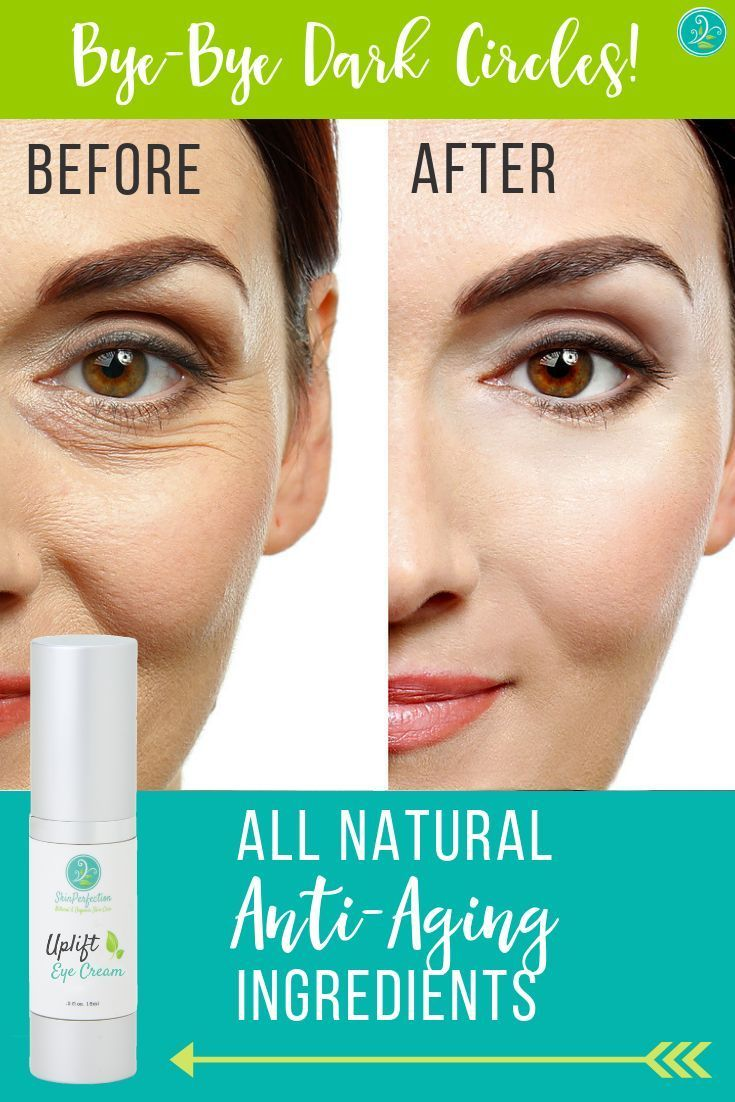 Say Bye Bye To The Appearance Of Dark Under Eye Circles With The Help Of Our Uplift Eye Cream Th Anti Aging Skin Products Anti Aging Eye Cream Aging Skin Care