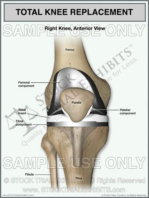 Total Knee Replacement Of The Right Knee Nursing School Hand