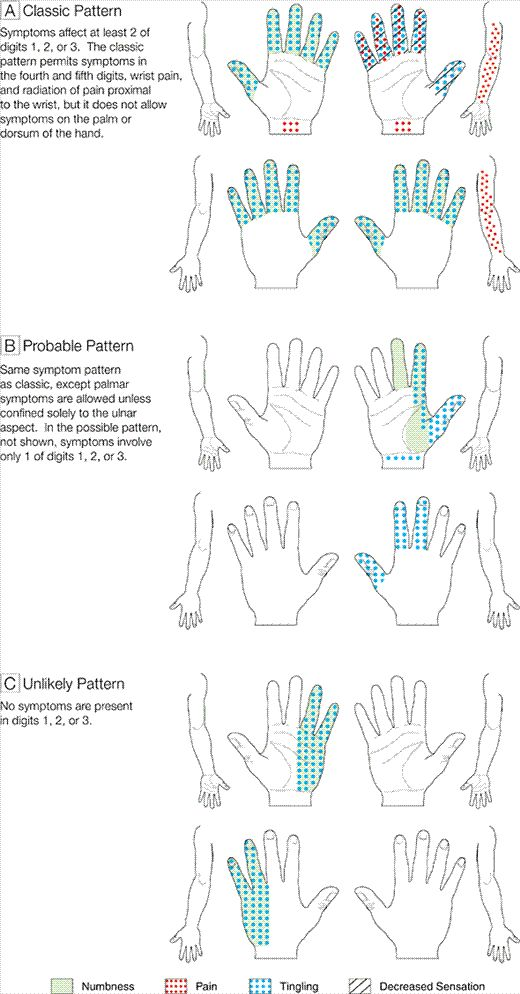 carpal tunnel syndrome diagnosis-Pinned by SOS Inc. Resources @sostherapy.
