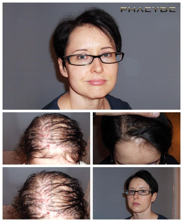 Susan had huge soul related issue = lack of self confidence. She was loosing her hair on a diffuse way, everywhere. 1 day long treatment, between long hair challanged our team enough. But fortunately we could make her satisfied with the result. She is happy and self confident now. Done by PHAEYDE Clinic.  http://sv.phaeyde.com/har-implantation