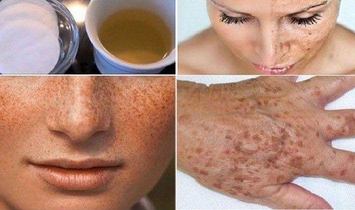 Trápia vás tmavé pigmentové škvrny na rukách či tvári a chceli by ste ich odstrániť? Spôsob, ako to urobiť, nájdete v tomto článku! | Báječné Ženy