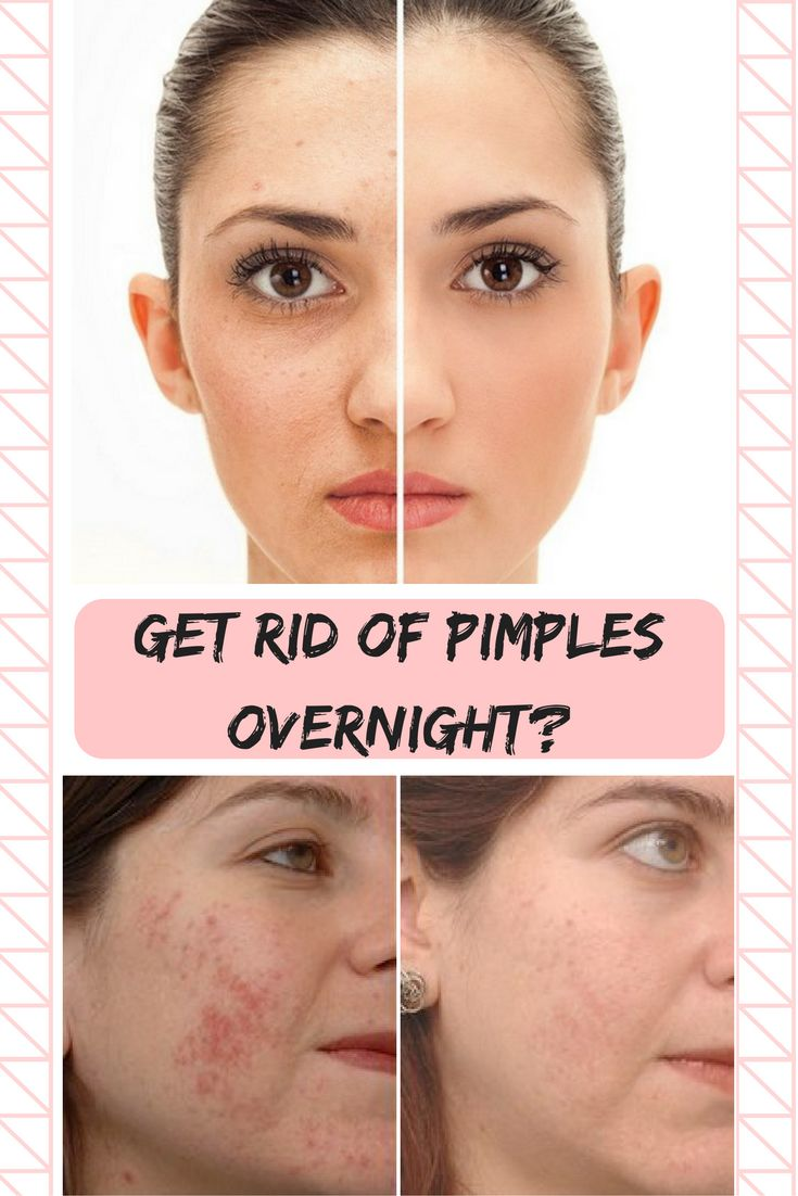 GET RID OF PIMPLES OVERNIGHT?