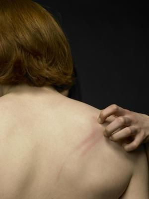 Itchy Skin Rashes: There are a number of different types of itchy skin rashes.
