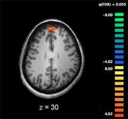 Schizophrenia - Disorganized Type