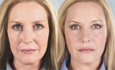 GOJI CREAM is een van deze innovatieve producten, ontworpen voor een snelle verjonging van het gezicht, nek en decolleté