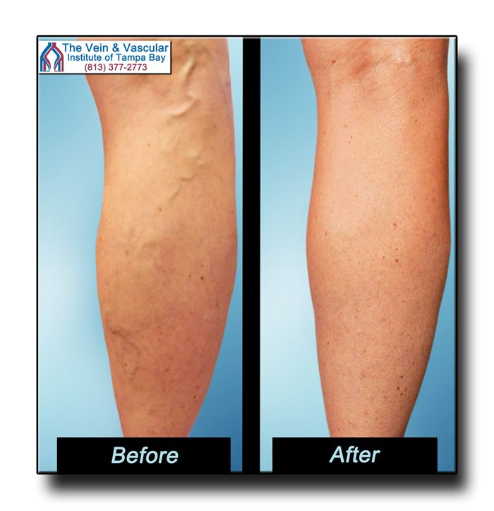 Tampa Varicose Vein Removal Before and After Pictures.  Varicose vein removal has never been this easy!  Our Tampa vascular doctors use the latest technology to quickly and safely eliminate varicose veins.  Call (813) 377-2773 to schedule your Vein Consultation at our vein clinic in Tampa.  https://www.tampavascularsurgeon.com/tampa-varicose-vein-removal-pictures/