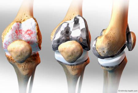 Learn about total knee replacement surgery (total knee arthroplasty), a surgical procedure to treat severe pain and loss of function from knee arthritis.