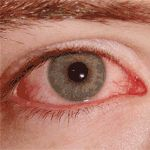 Top 10 Most Unusual Bloodshot Eyes Causes - http://www.healtharticles101.com/top-10-most-unusual-bloodshot-eyes-causes/#more-312