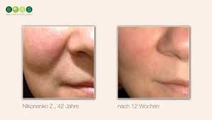 Facelifter results