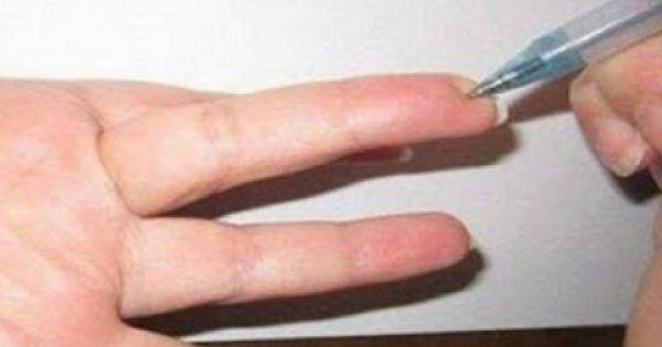 Δείτε το σημείο στο δάχτυλο που μειώνει την πίεση και εξαφανίζει κάθε είδους πόνο