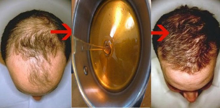 Baldness Treatment Recipe : After Two Days Your Hair WILL BEGIN TO GROW - http://nifyhealth.com/baldness-treatment-recipe-after-two-days-your-hair-will-begin-to-grow-3/