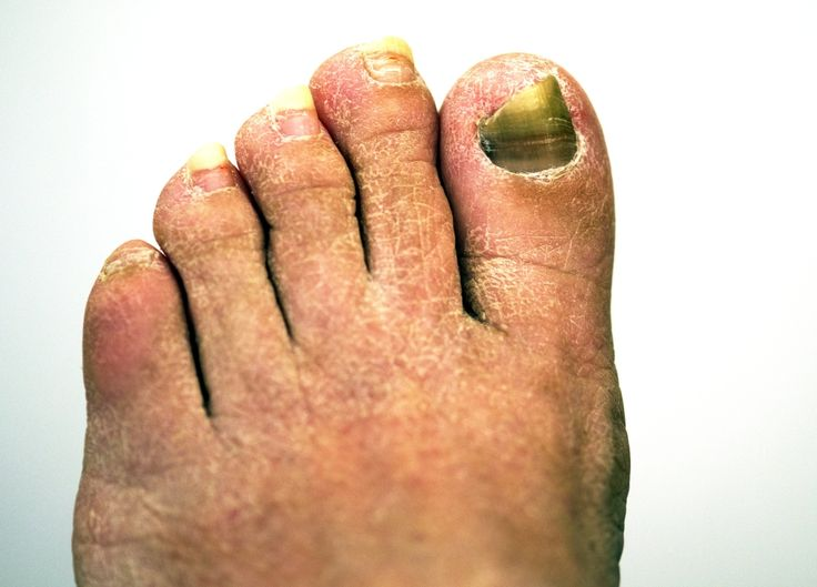 Six Ways to Prevent Toenail Fungus
