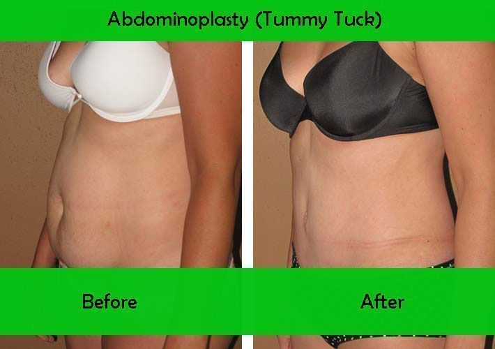"""or """"tummy tuck"""" is a cosmetic surgery procedure used to make the abdomen more fi…"""