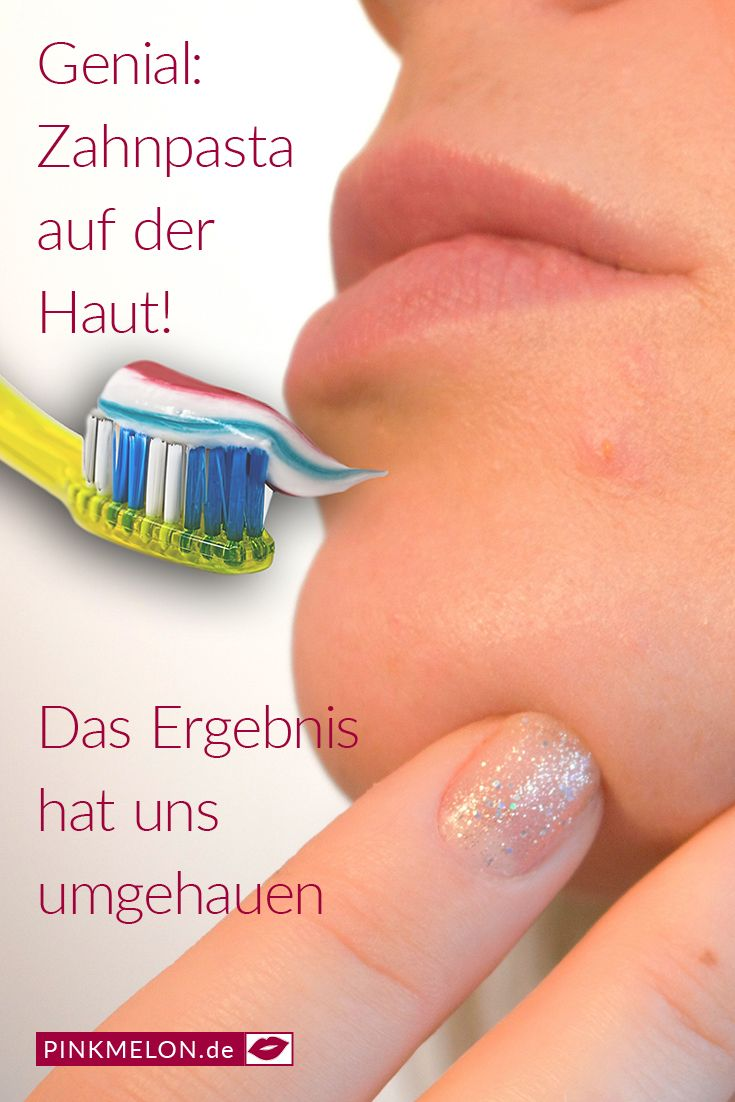 Genial: Zahnpasta auf der Haut! Das Ergebnis hat uns ...