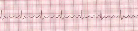 Atrial Flutter with a 3 flutter wave to 1 QRS conduction A-flutter is very similar in nature to that of A-fib. Instead of merely quivering, instead the Atria are contracting very rapidly. This can also result in RVR. Additionally A-flutter can be regular or irregular. Before each QRS complex will be at least one flutter wave, sometimes many more. A flutter wave is similar to a P-wave except that often times there will be a varying amount of them.