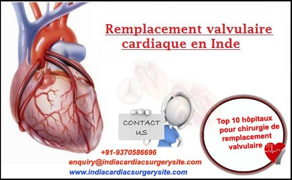 Cardiology Hospitals In India Were The First To Provide Exceptional Heart Care Some Of These Groups Are The Largest Integrated H Chirurgie Cardiologie Hopital
