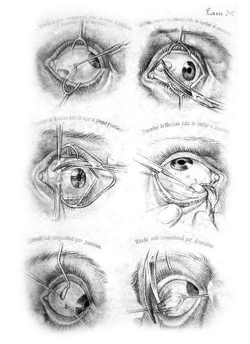 """Estudios sobre cirugía ocular del libro """"Monografía oftalmológica"""" realizados a lápiz."""