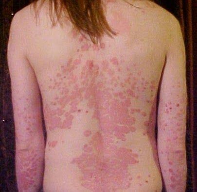 obat kulit alami cepat: Obat kulit alami cepat