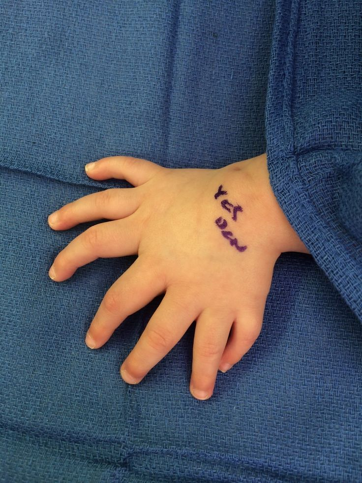 Congenital Hand And Arm Differences: 240 Best Plastic Surgery Images On Pinterest