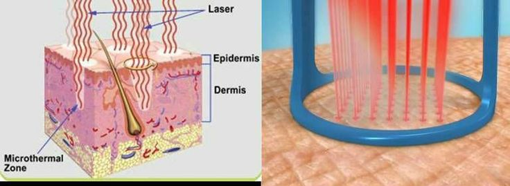 Curious how the Pixel laser treatment works to resurface your skin, reduce appearance of scars and reduce your pores?   Here is a basic diagram. For more details you can visit our website at www.beauty-redefined.com, or you can schedule a complimentary consultation and speak directly with our medical aesthetic nurse specialists.