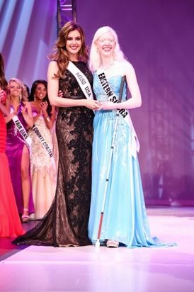 Legally Blind Miss Congeniality Crowned at Miss California USA