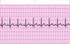 Cardiac - Rhythm Strips flashcards | Quizlet