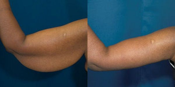 Four Ways to Tone Your Arms With No Equipment Required :http://ehealthyfood.com/four-ways-to-tone-your-arms-with-no-equipment-required/
