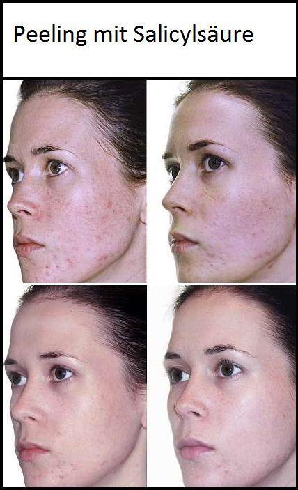 Auch das Salicylsäurepeeling ist eine Behandlungsmethode, die begleitend bei der Therapie der Akne und zur Hautbildverbesserung von grobporiger und talgiger Haut eingesetzt wird. Salicylsäure kommt in der Natur hauptsächlich in Weidenrinde vor, die seit langem zur Behandlung unterschiedlicher Hauterkrankungen angewendet wird.