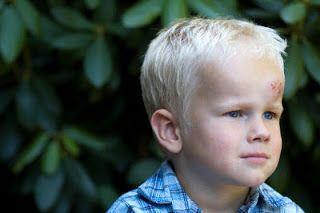 Yeni bir çalışmaya göre beyin sarsıntısı geçiren çocuklarda hangi hastaların daha uzun takip gerek...