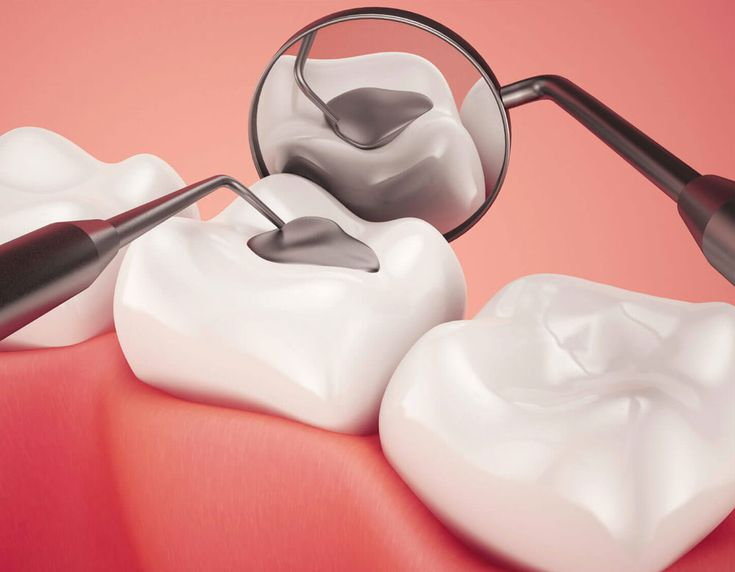 Composite Fillings At Delta Dental, amalgam fillings are not typically something we would advocate for, as we find there are better alternatives here. https://deltadentalbc.com/portfolio-items/composite-fillings/